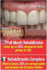 Tijuana Mouth Rehabilitation