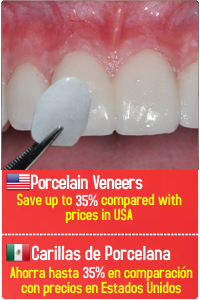 Porcelain Veneers in Tijuana