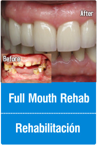 tijuana-dentistry-mouth-rehab